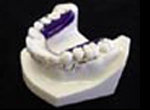 Inman Aligner Retraction Appliance