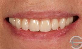 Cosmetic Complete Dentures