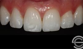 Icon white spot treatment