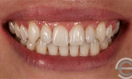 Tooth whitening and Icon white spot treatment
