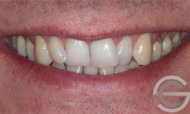 12 months Invisalign and tooth whitening
