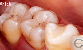 Cosmetic white filling to replace old amalgam
