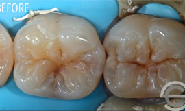 Two cosmetic white fillings