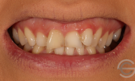Amalgam replacement with cosmetic white filling