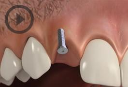 Temporaries Implants