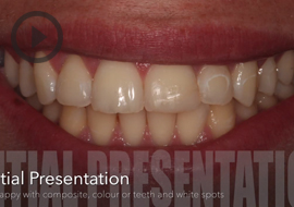 Tooth whitening, DMG Icon and cosmetic bonding by Dr Simon Chard