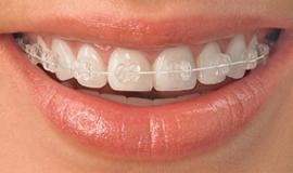 Quick Straight Teeth